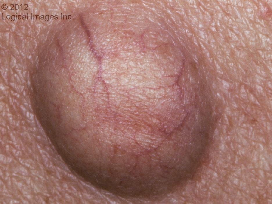 dermatology | I Hate Rashes
